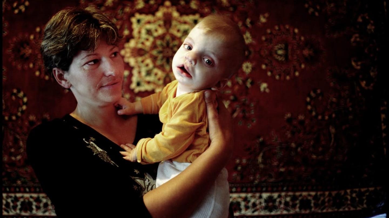 Фото дети с чернобылем