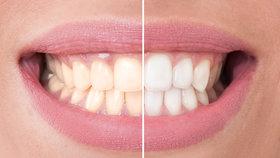 Bělení zubů hlavní fotka Foto: