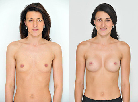 Příklad úpravy prsou na Klinice YES VISAGE 02 Foto: