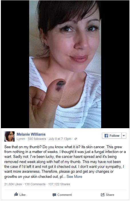 Kvůli melanomu přijde o palec na ruce Foto: