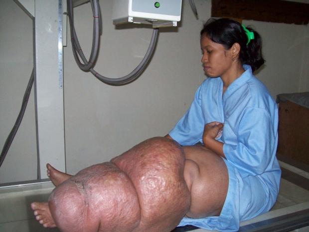 tratamento para oxiuros enterobius vermicularis curăță corpul de viermi