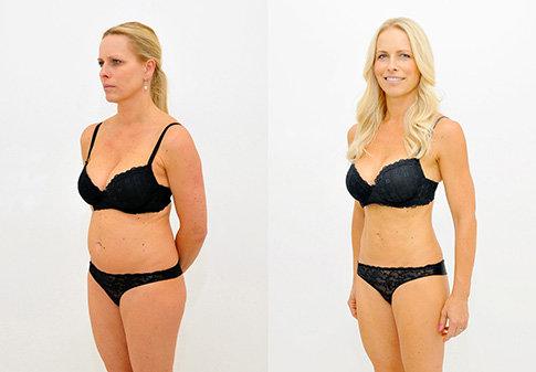 Výsledek laserové liposukce SlimLipo na Klinice YES VISAGE 007 Foto: