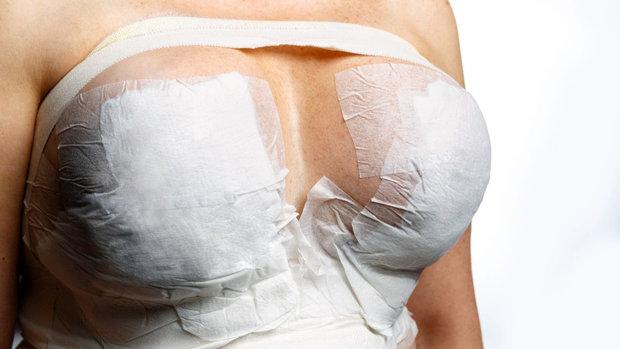 Spousta věcí, co se o prsních implantátech říká, není pravda Foto: