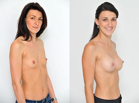 Příklad úpravy prsou na Klinice YES VISAGE 01 Foto: