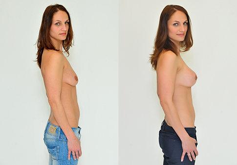Příklad úpravy prsou na Klinice YES VISAGE 03 Foto: