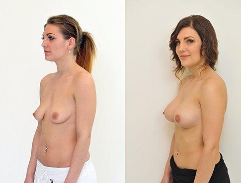 Příklad úpravy prsou na Klinice YES VISAGE 05 Foto:
