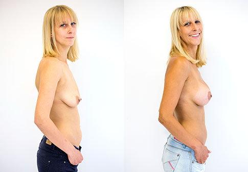 Příklad úpravy prsou na Klinice YES VISAGE 06 Foto: