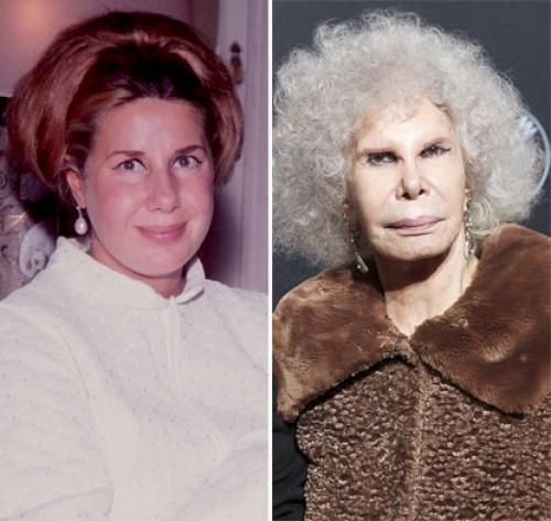 Nepovedené plastické operace: Vévodkyně z Alby Foto: geniusbeauty