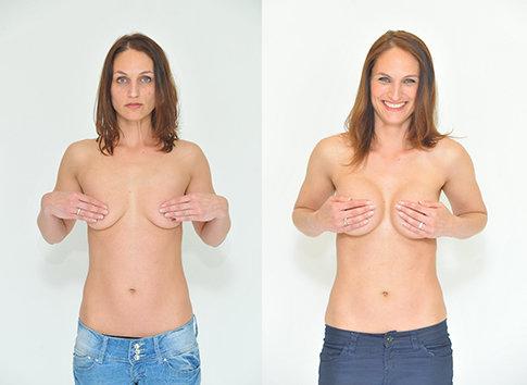 Příklad úpravy prsou na Klinice YES VISAGE 04 Foto: