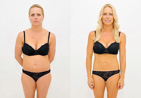 Výsledek laserové liposukce SlimLipo na Klinice YES VISAGE 008 Foto: