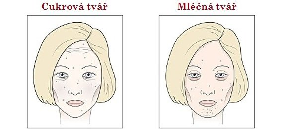 obličej2 Foto:
