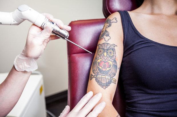 odstranění tetování laserem Foto: