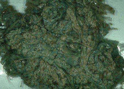 Ideálním prostředím pro Legionellu jsou pak nádrže a zahradní hadice z PVC, plastu nebo gumy, kde se usazuje tzv. biofilm, který je doslova živnou půdou této nemoci Foto: