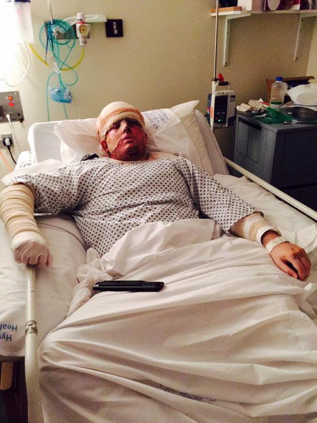 Andreas Christopheros - Muž s poleptaným obličejem od kyseliny - Obrázek 3 Foto: