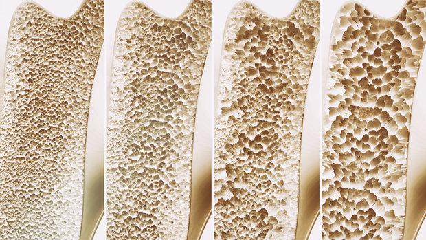 4 fáze řídnutí kostí Foto: