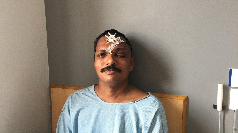 Muž skončil s kovovou tyčí zaraženou v obličeji 5