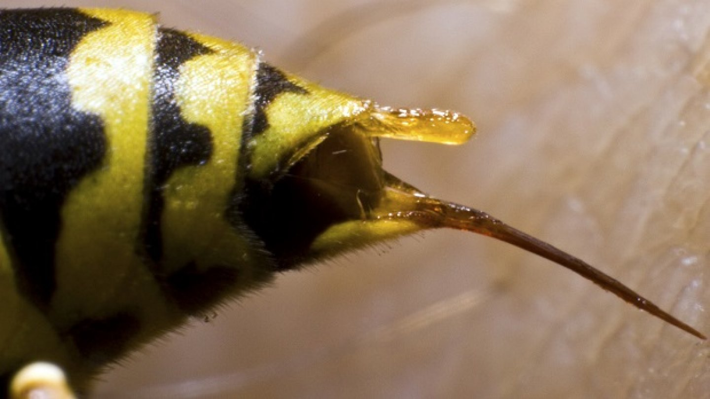 bee sting reactions local systemic and toxic drgreenecom - HD1180×842