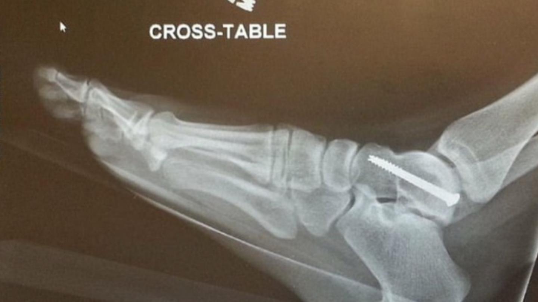 zranění - nohy na palubní desce