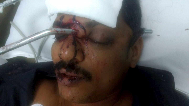 Muž skončil s kovovou tyčí zaraženou v obličeji 1