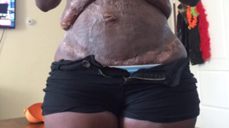 Zdeformované břicho po liposukci