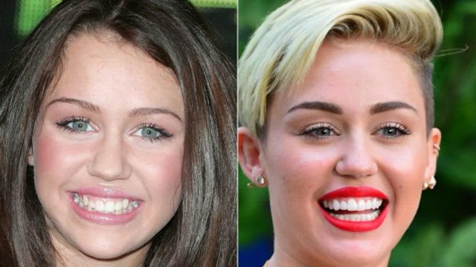 8 celebrit, kterým zubař zachránil kariéru