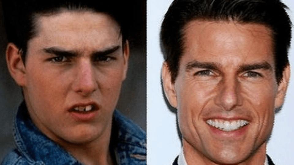Video VIP zprávy: Tom Cruise měl v mládí pěkně křivý úsměv...