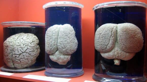 mozek člověka - nosorožce a delfína