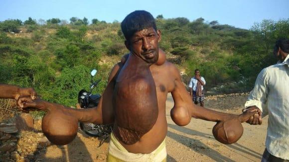 Muž s obřími nádory na těle 6