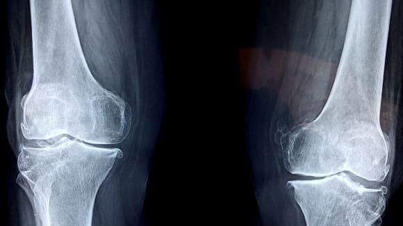 Budoucnost kostních implantátů je v 3D tisku