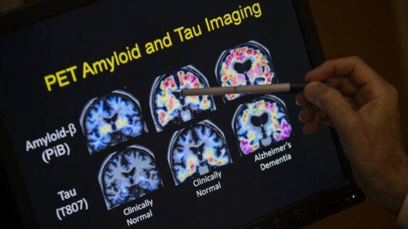 Alzheimerovu nemoc chtějí experti diagnostikovat pomocí skenu mozku
