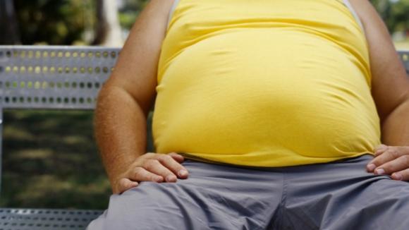 Obezita ilustrační foto