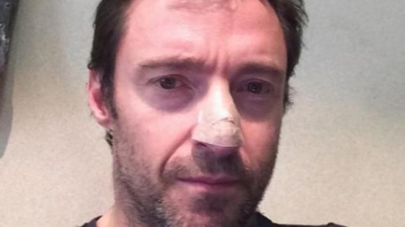 Hugh Jackman má na nose jizvu po operaci