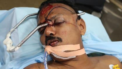 Muž skončil s kovovou tyčí zaraženou v obličeji 4