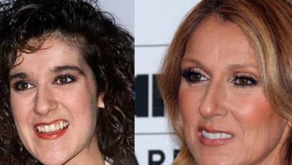 Céline Dion musela změnit nejen zuby