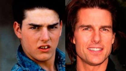 Důkaz, jak moc s obličejem udělají pěkné zuby