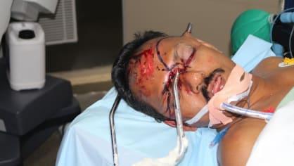 Muž skončil s kovovou tyčí zaraženou v obličeji 3
