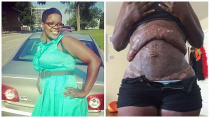Žena se zdeformovaným břichem po liposukci