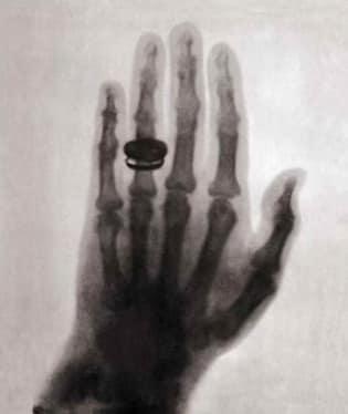 Rentgen má počátky již v roce 1895. Za svůj objev dostal Conrad Röntgen v roce 1901 Nobelovu cenu za fyziku