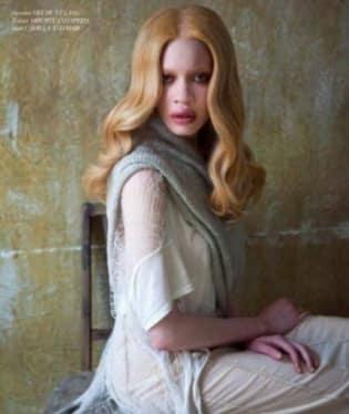 Diandra Forrestová, první albínka na molech afroamerického původu