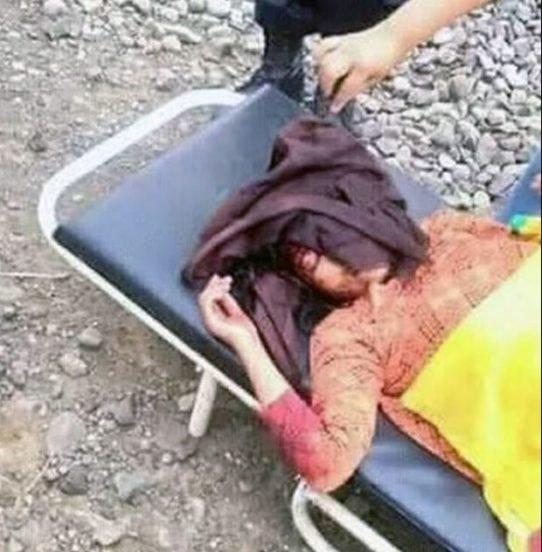 Dívka po nehodě