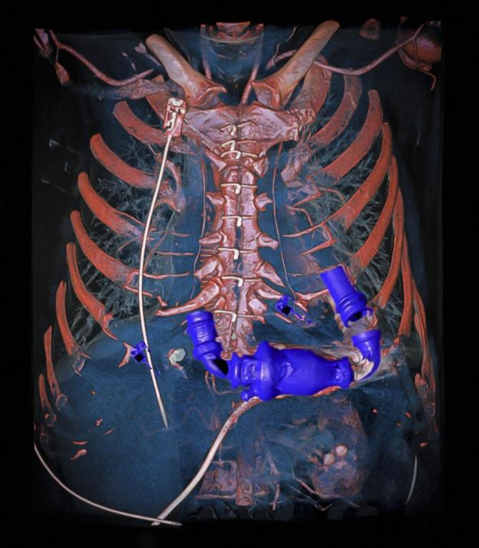 Vítězná fotografie zachycuje pohled tomografu DECT (CT s duální energií záření)