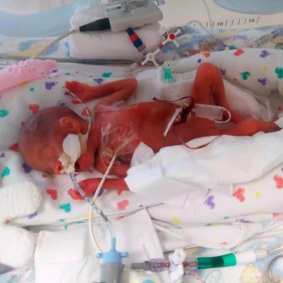 Dítě se narodilo předčasně