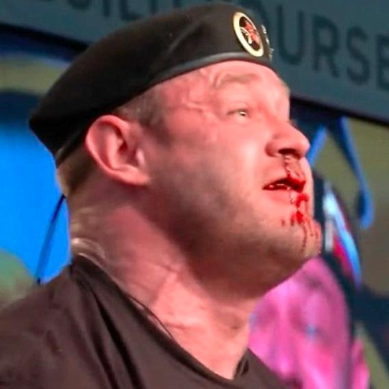 Vzpěrači vytryskla krev z nosu při zvedání činky