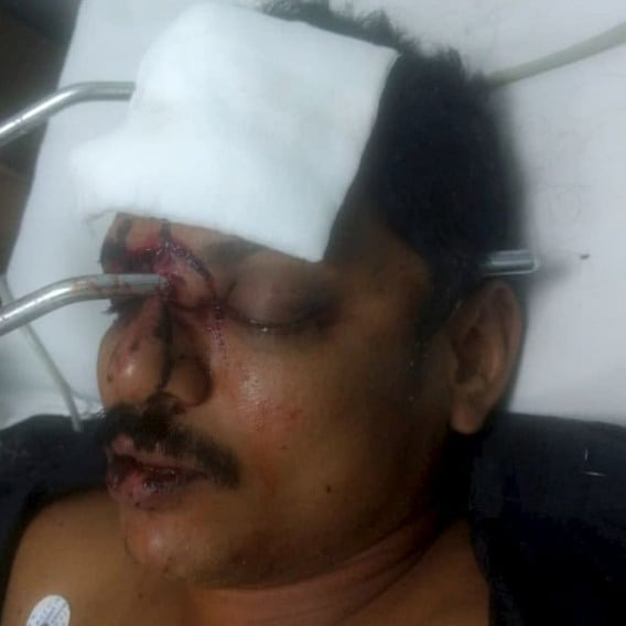 Muž skončil s kovovou tyčí zaraženou v obličeji 2