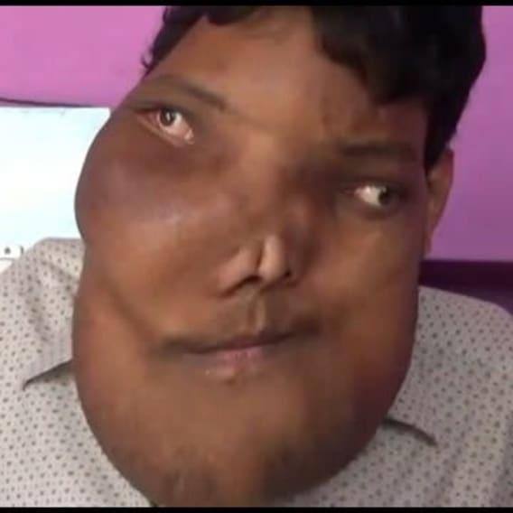 Muž žije s obřím nádorem na obličeji 3